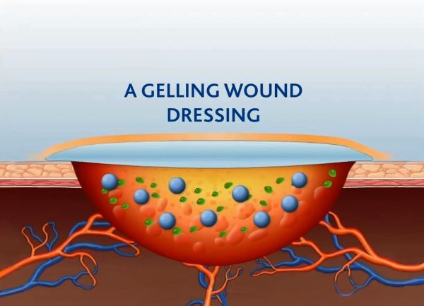 Woundcare Animation